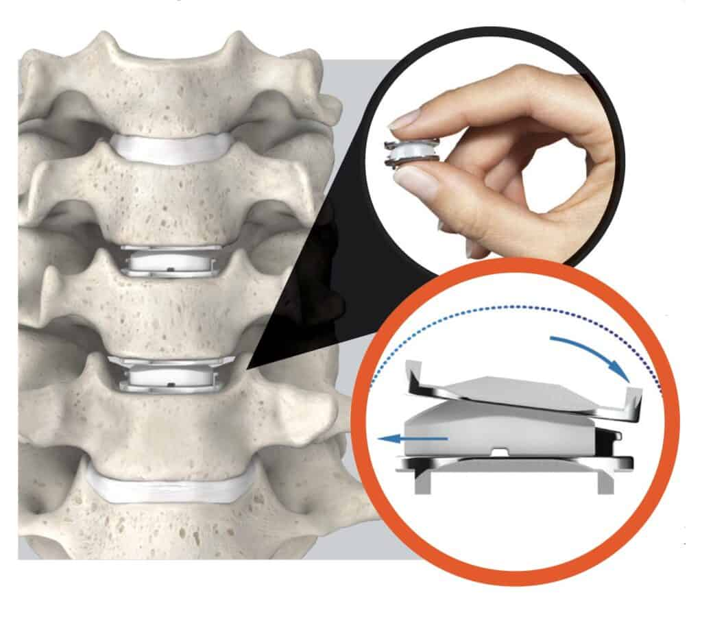 Spine Care At It's Best